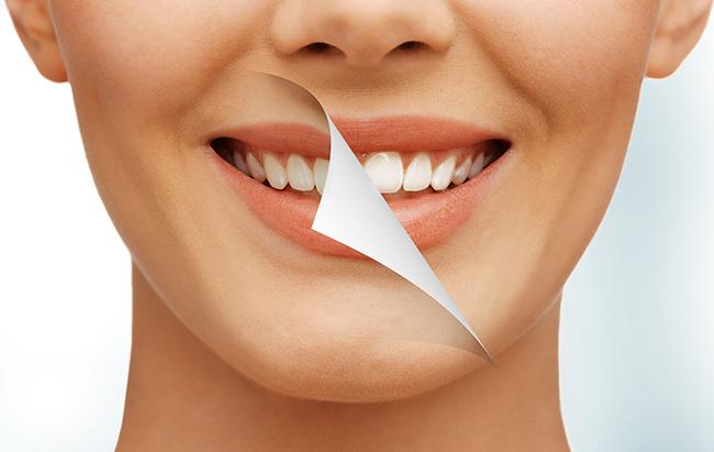 Làm trắng răng