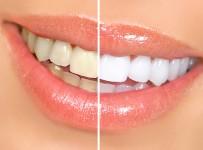 Nguyên nhân gây đổi màu răng